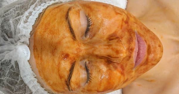 Facials Banner Skin Treatments