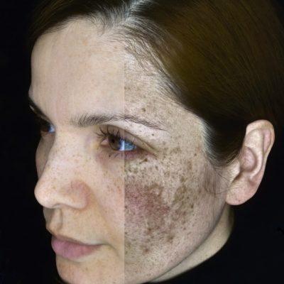 Observ Pigmentation Melanin