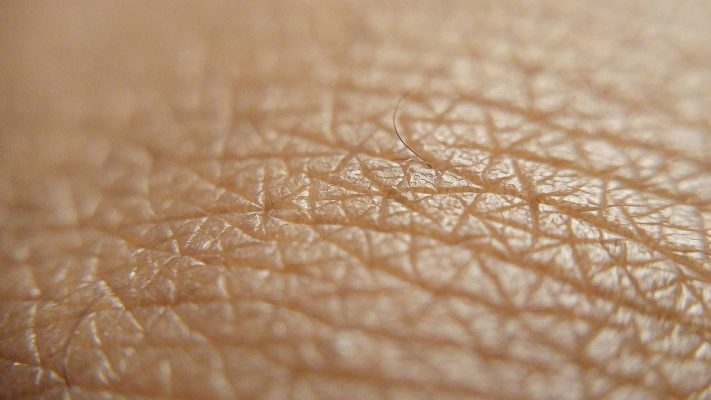 1280px-Human_skin_close-up