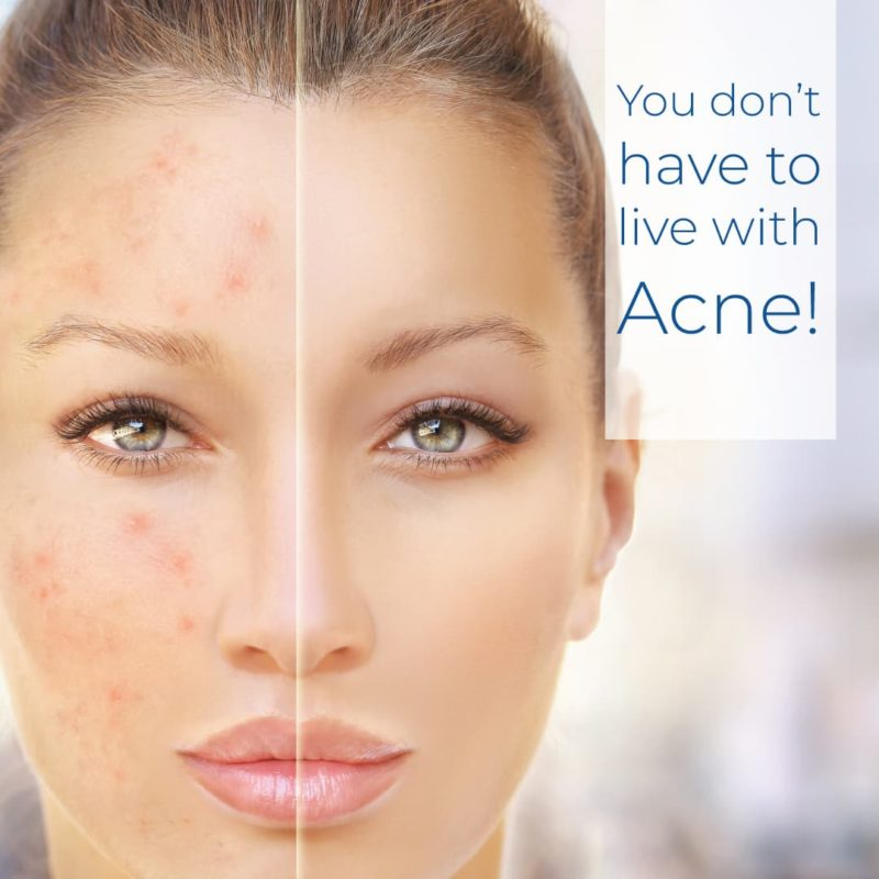 Acne, Blemishes, Congestion, Acne Scarring