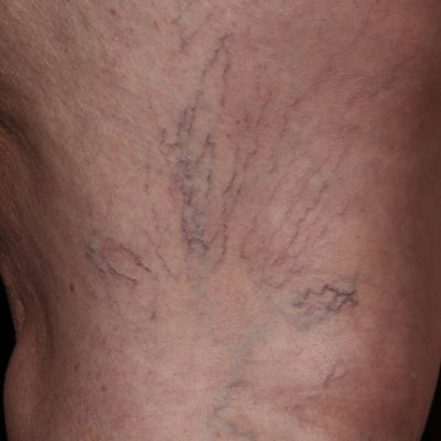 excel HR Laser Vascular Leg Veins